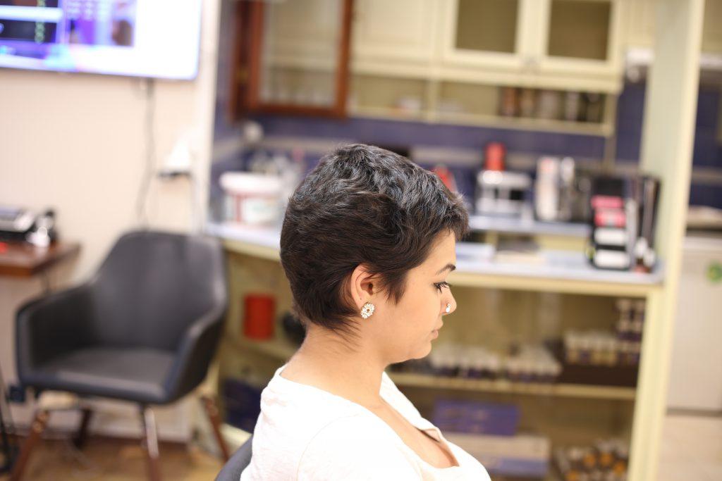 çok kısa saça nano saç kaynak uygulama